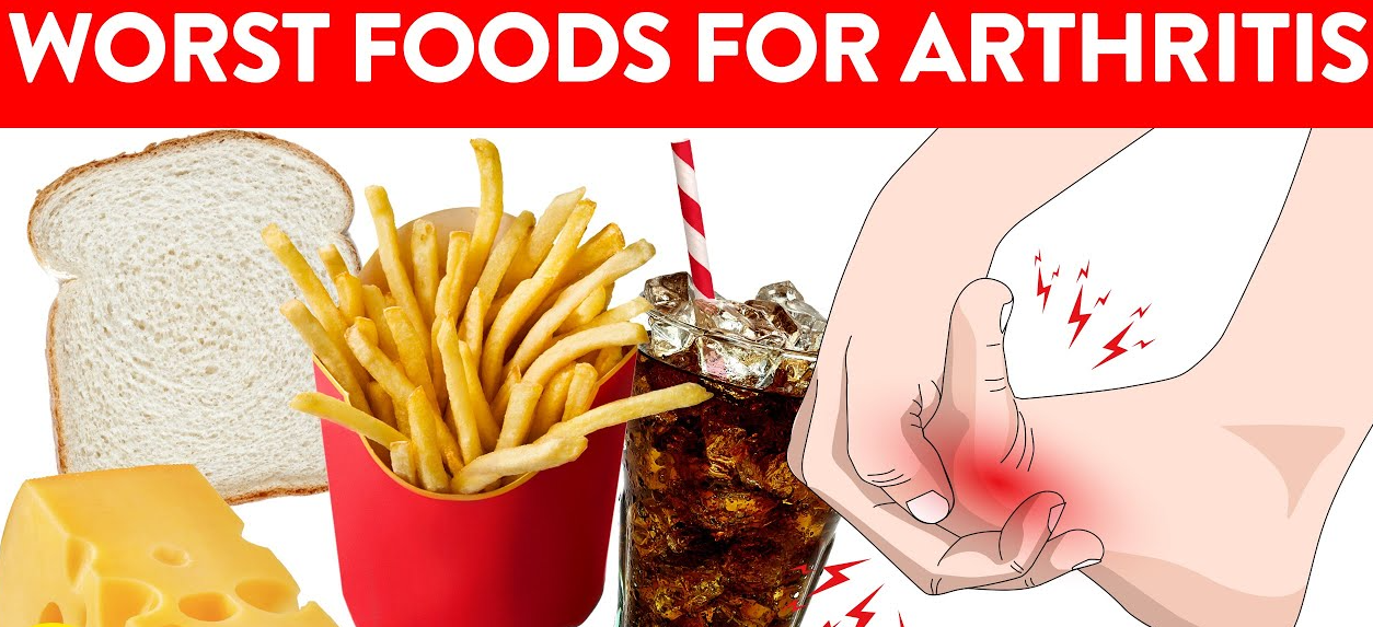 9 อาหารและเครื่องดื่มที่ควรหลีกเลี่ยงหากคุณเป็นโรคข้ออักเสบ